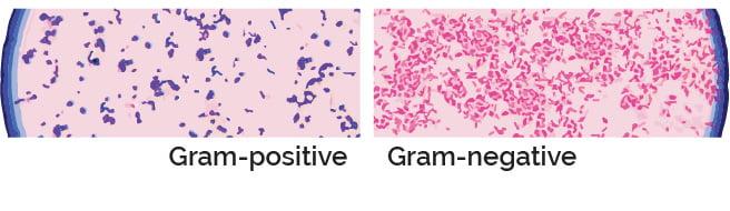 Gram-positive Gram-negative